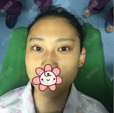 宁波雅韩刘成林双眼皮术后即刻