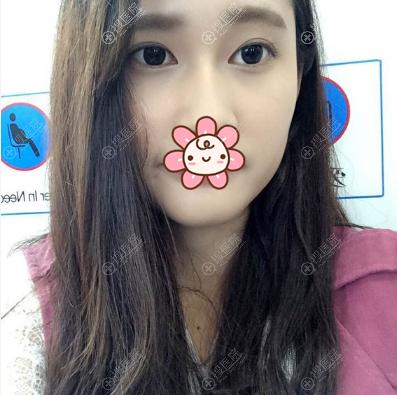 刘成林双眼皮术后2个月效果