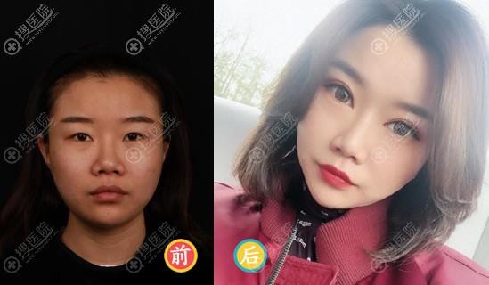 北京爱悦丽格马力全切双眼皮案例