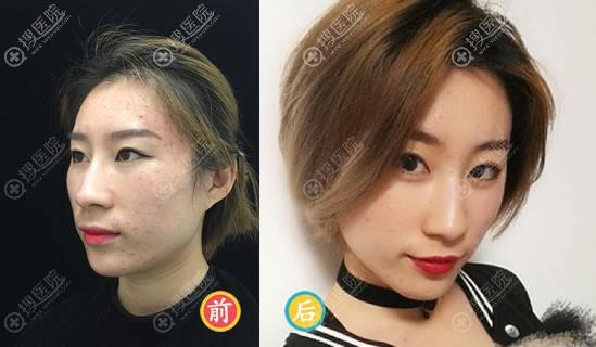 北京爱悦丽格陈波隆鼻案例