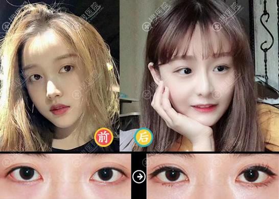 北京永成魅力双眼皮修复案例