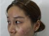 自从看了福州海峡林秀兰的双眼皮案例后就决定找她做眼综合了