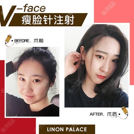 北京玲珑梵宫注射瘦脸针案例效果