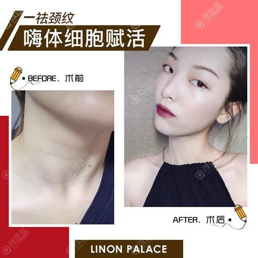 玲珑梵宫注射嗨体祛颈纹案例