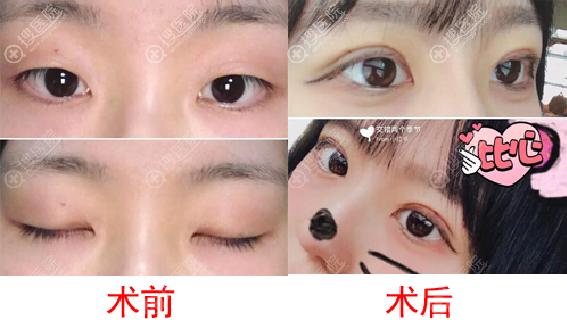 广州海峡整形医院郭栋割双眼皮案例对比