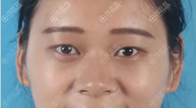双眼皮术前我是小内双