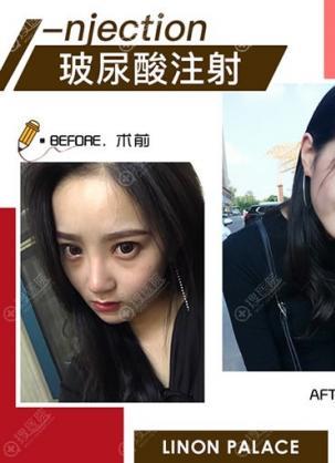 一大波北京玲珑梵宫高春红注射玻尿酸肉毒素水光针整形案例来袭