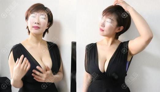北京长虹赵宏伟假体隆胸案例半年效果