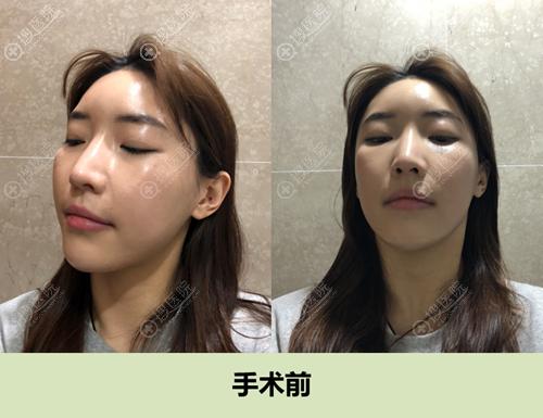 韩国id整形医院颧骨失败修复术前照片
