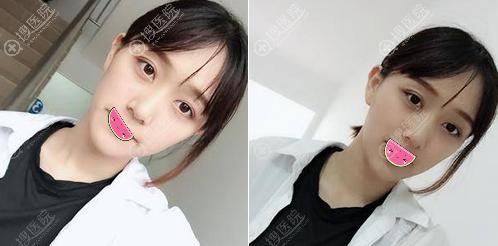 申国铉双眼皮跟眼角修复一个月