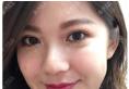 看了西安高一生的溶脂案例后找西安美莱王鹏做了面部吸脂瘦脸