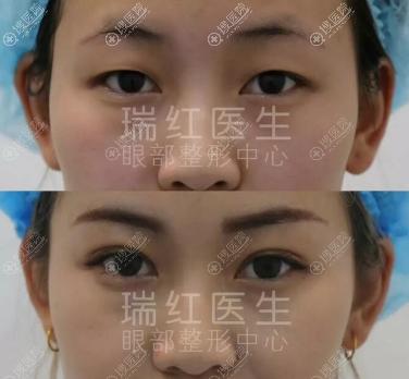 新疆乌鲁木齐医瑞整形张瑞红韩式芭比翘睫双眼皮案例
