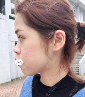 广州美莱罗延平假体垫下巴+鼻综合真人案例