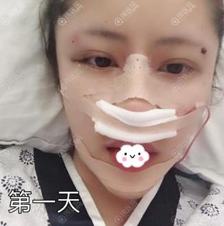 广州美莱罗延平假体垫下巴+鼻综合术后第1天