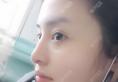 我找上海华晋孙建斌做的双眼皮和隆鼻子,感觉技术好价格也合理