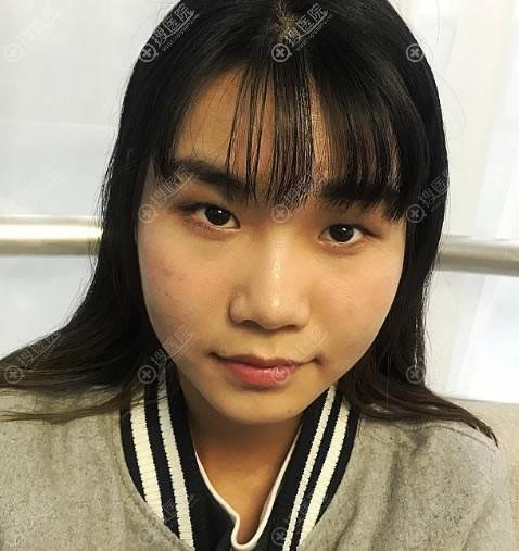 在北京炫美做埋线双眼皮前
