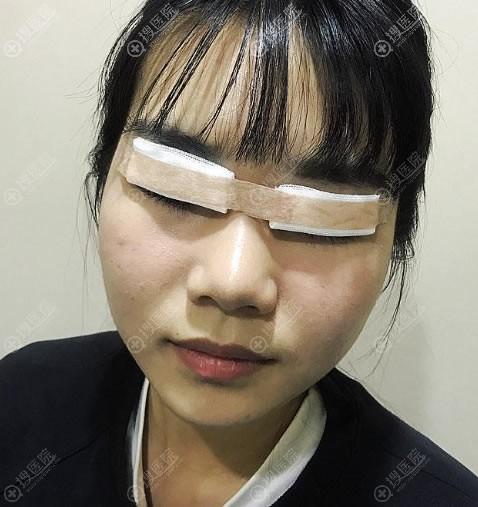 北京炫美刚做完双眼皮手术图片