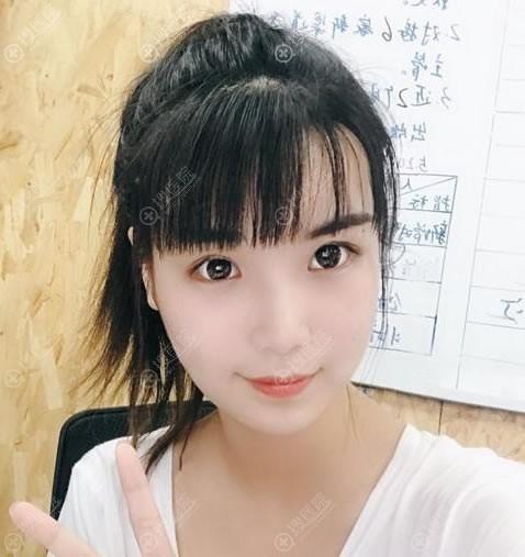 北京炫美周亮双眼皮案例10天效果