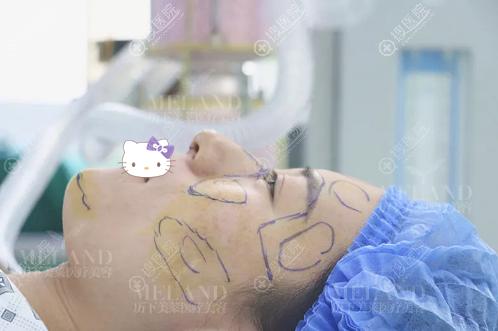 济南美莲自体脂肪填充面部术后即刻