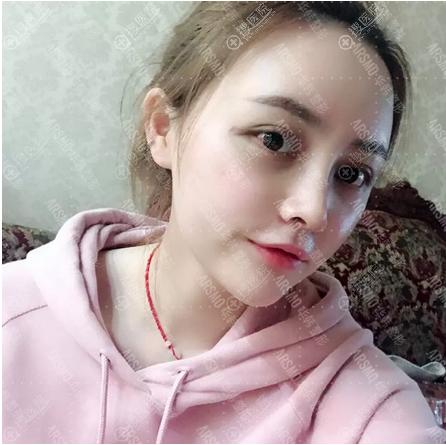长沙华韩华美张涛医生隆鼻脂肪填充案例