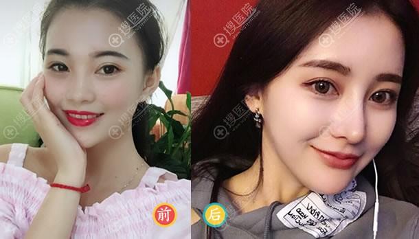 北京玲珑梵宫隆鼻案例对比图