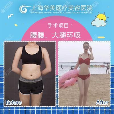 上海华美何斌主任做的大腿腰腹部吸脂案例