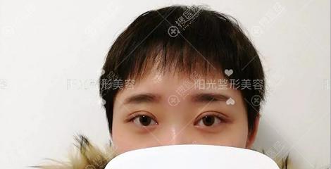 杨小顺综合美眼术后3个月效果