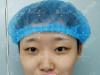 在郑州阳光整形做双眼皮3个月我又找杨小顺做了假体隆鼻垫下巴