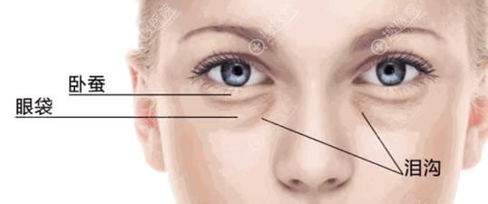 眼袋和卧蚕的区别