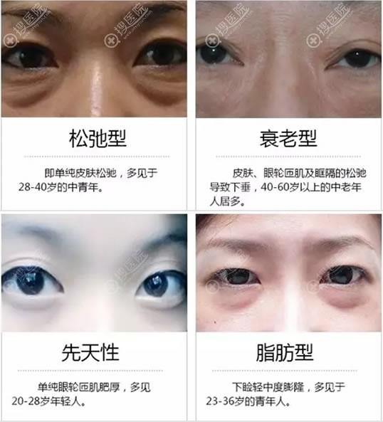 眼袋类型示意图