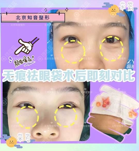 北京知道内路法祛眼袋案例