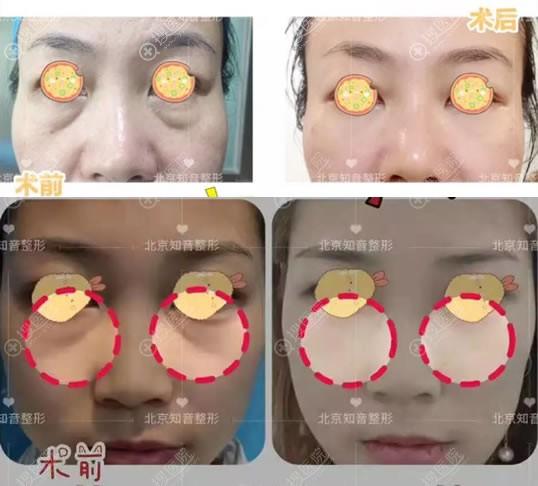 北京知音外路法祛眼袋案例