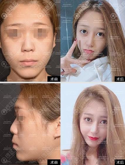 李劲良鼻综合隆鼻案例对比图