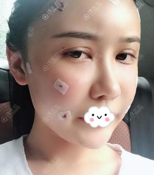 广州韩妃王媛自体脂肪填充术后效果