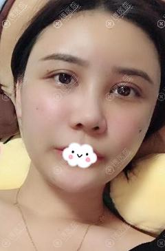 广州韩妃王媛自体脂肪填充术后恢复真实效果