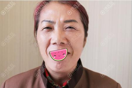 扬州艾菲斯整形殷刘晴玻尿酸和肉毒素联合治疗7天除皱效果图