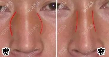 鼻子侧面看挺正面好塌是宽鼻梁的原因