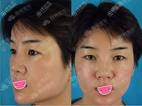 鼻综合手术前鼻子侧面看挺正面好塌