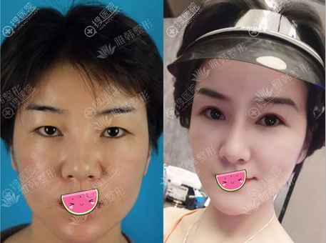 鼻综合整形手术后对比照