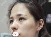 广州军美王世虎案例与价格助您了解广州哪家医院脂肪填充好?