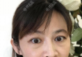广州去眼袋正规医院哪里好?广州美莱蒙喜永外切去眼袋案例价钱