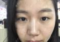 看了泉州美莱华美杨红华的案例后找杨和强医生做了全切双眼皮