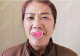 扬州艾菲斯整形殷刘晴玻尿酸和瘦脸除皱联合治疗7天除皱效果图