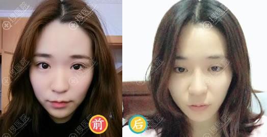 沈阳百嘉丽王志涛硅胶假体隆鼻案例