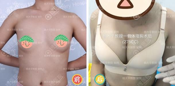 联合丽格杨大平傲诺拉假体隆胸案例