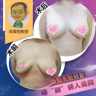 陈育哲做的隆胸失败修复案例图片