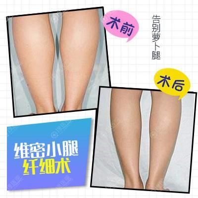 陈育哲教授做的维密小腿纤细吸脂术案例