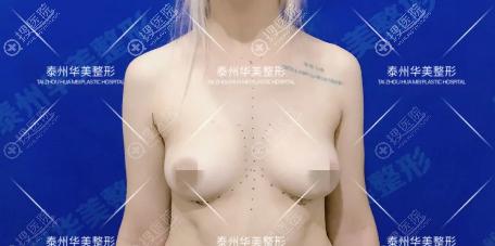 术前胸部下垂,形态不美观