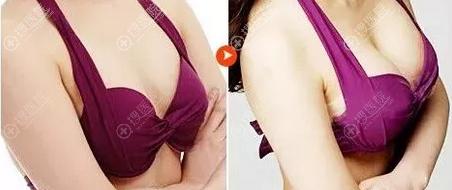 泰州华美整形美容医院假体丰胸术后对比