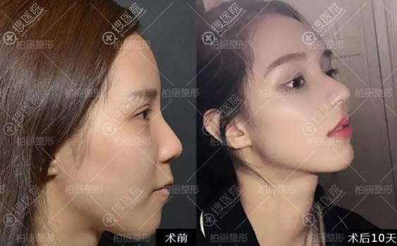 北京柏丽李劲良鼻头缩小案例